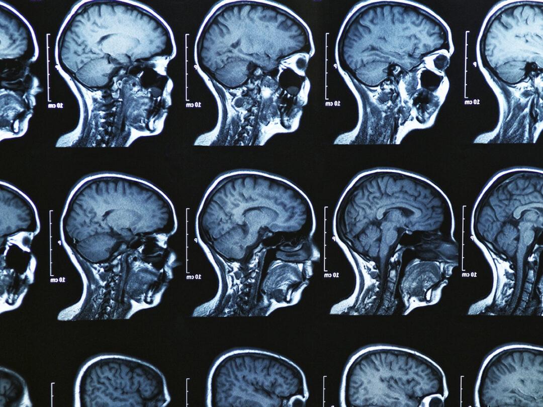 Síntomas de la esclerosis multiple