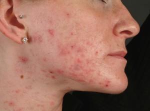 acne-excoree