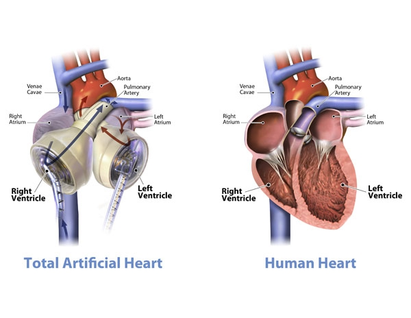 Un corazón artificial
